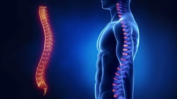 En México el diagnóstico para la Atrofia Muscular Espinal tarda años